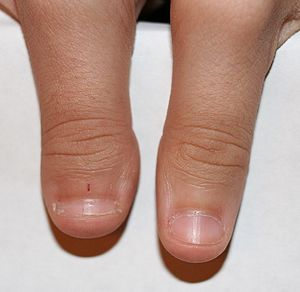 300px-Clubbed_thumb.jpg