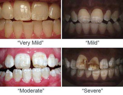 871da062442c84fb16c7b1629b665cc5--dental-fluorosis-dental-hygiene.jpg