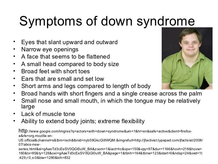 the clinical descriptiom of downs syndrome Down syndrome (ds), also called trisomy 21, is a condition in which a person is born with an extra chromosome chromosomes contain hundreds, or even thousands, of genes genes carry the information that determines your traits (features or characteristics passed on to you from your parents.
